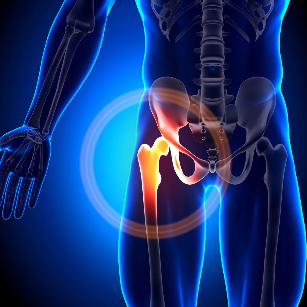 Fractura de cadera, síntomas
